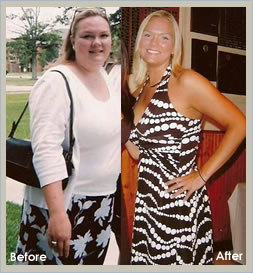 Before After Pictures Testimonials Gastric Bypass Before After