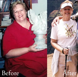 Gastric Bypass Before And After Photos Gastric Bypass Before After