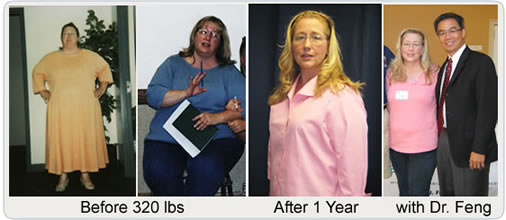 Before Amp After Pictures Amp Testimonials Gastric Bypass